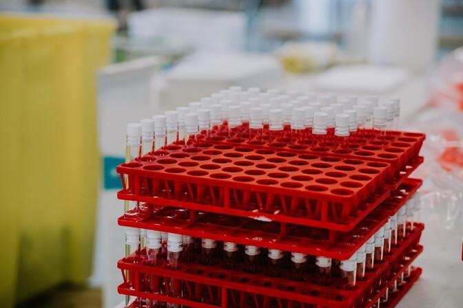 В больницах с коронавирусом находятся 165 человек, умерли двое