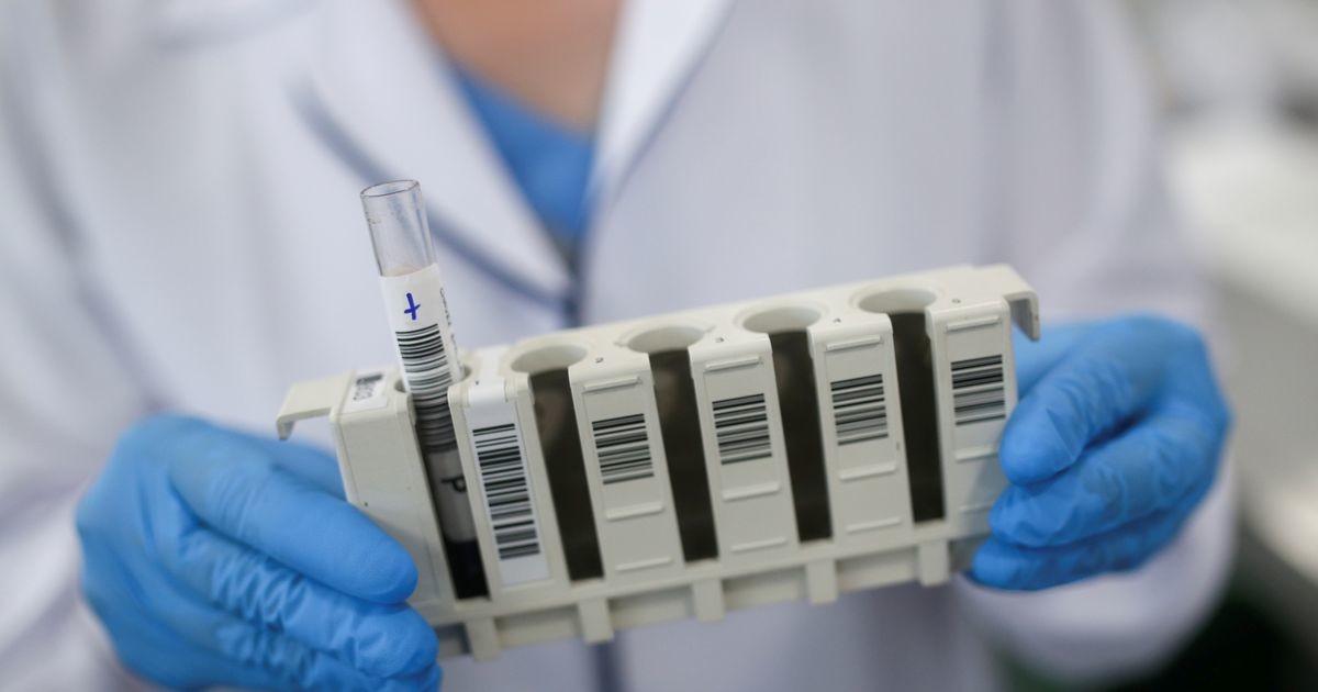 SYNLAB снижает стоимость ПЦР-теста на коронавирус