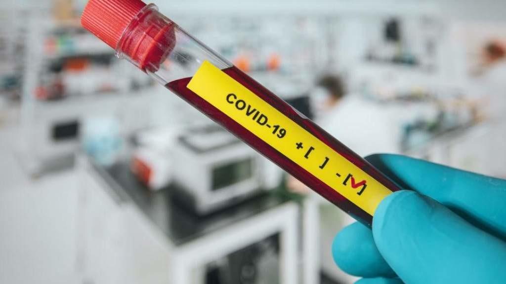 О коронавирусе в Литве сегодня, 31 марта